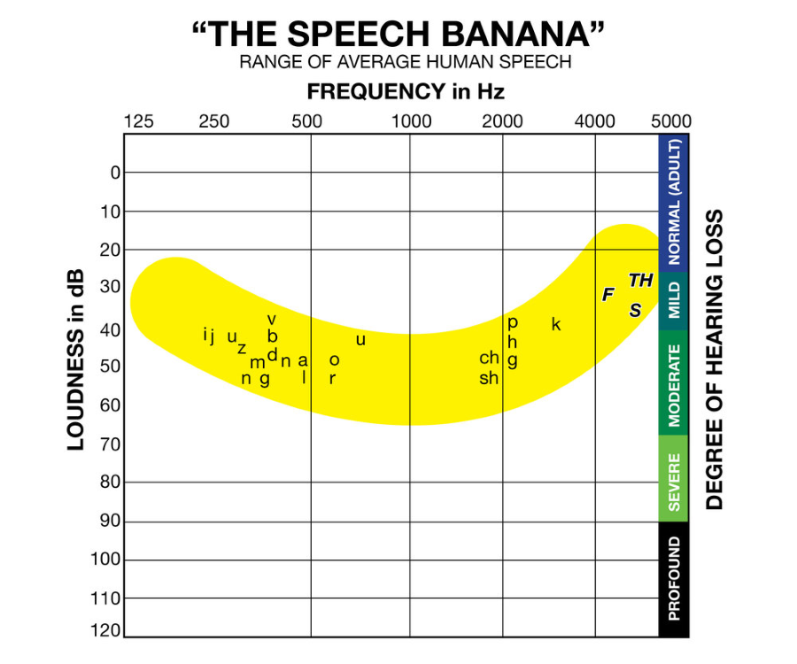 "An audiology ""speech banana"" indicating common sounds and their decibel/frequency range."