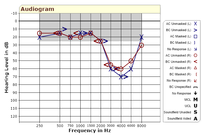 Audiogram showing pattern of noise-induced hearing loss.